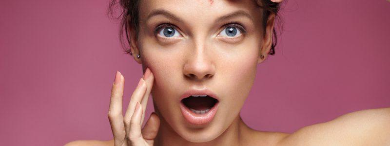 acne-photo